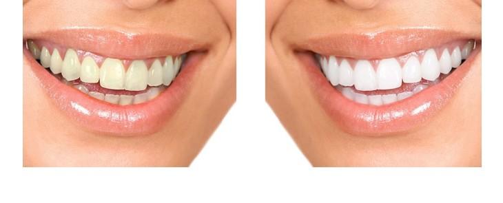 FUN but REAL: Białe zęby są ładniejsze od jasnoszarych - to samo odnosi się do listwy zaciskowej